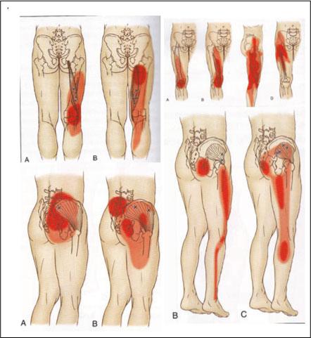 実は坐骨神経ではなく、おしりや脚の痛みの原因に多いモノとして、おしりや下半身の筋肉の過緊張によっての痛みなどが、かなりあります。